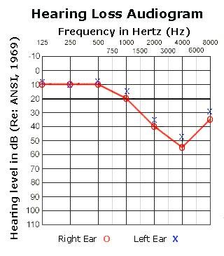 hearing_loss_audiogram1